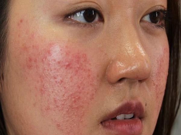 viêm da tiếp xúc ở mặt