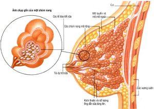 Phân biệt bệnh u xơ và u nang tuyến vú 1